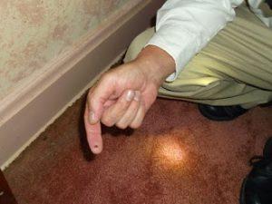 bed bug on exterminators finger